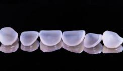 Viraler Hit: Zahnarzt testet selbstklebende Veneers von Amazon