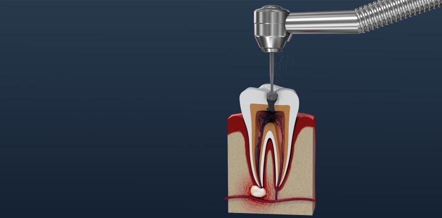 Wurzelkanalbehandlung: Vitale Zähne dank Hydrogel