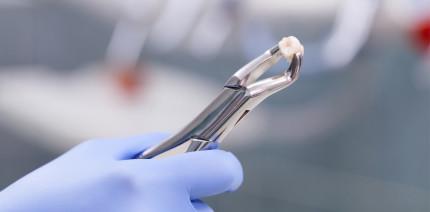 Wichtigstes Beweismittel im Mordprozess: Ein Zahn