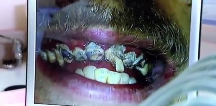 Verfaultes Gebiss: Brite putzt sich 20 Jahre lang nicht die Zähne