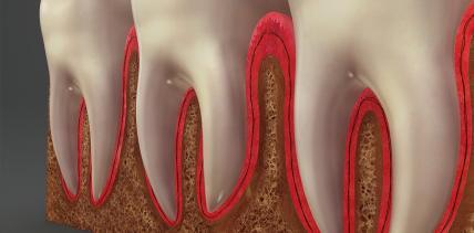 Werden Endodontie und Zahnerhaltung Gegensätze?