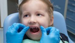 England: Zahnextraktionen bei Kindern 2017 auf Höchststand