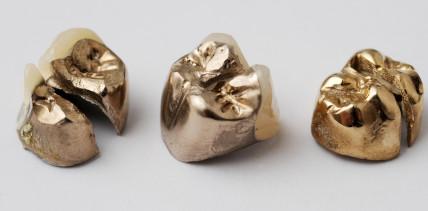 Zahngold: Lukrativ für Schweizer Krematorien