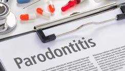 Zahnreport: Parodontitistherapie erfolgt oft zu spät