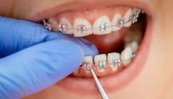 Metallstück einer Zahnspange bringt Jugendliche in Lebensgefahr
