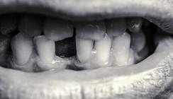 Führt COVID-19 nach Genesung zum Zahnverlust?