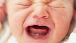 Das zu kurze Zungenband in der Kinderzahnheilkunde