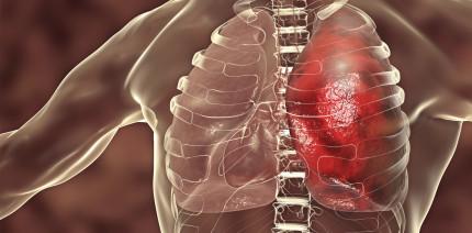 Lungenentzündung: Welchen Einfluss hat das Zungenmikrobiom?