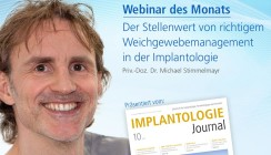 Webinar: Weichgewebemanagement in der Implantologie