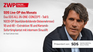Live-OP Das SDS ALL-IN-ONE-CONCEPT – Teil 5