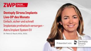 Implantate prothetisch versorgen