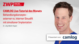 Behandlungskonzepte – externer vs. interner Sinuslift mit simultaner Implantation
