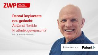 Dental Implantate neu gedacht: Äußerst flexible Prothetik gewünscht?