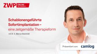 Schablonengeführte Sofortimplantation – eine zeitgemäße Therapieform