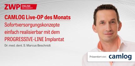 1 CME-Punkt: CAMLOG Live-OP mit Dr. Beschnidt jetzt im Archiv