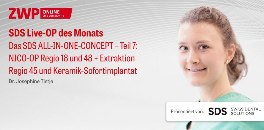 """1 CME-Punkt: Live-OP """"Das SDS ALL-IN-ONE-CONCEPT – Teil 7"""" im Archiv"""