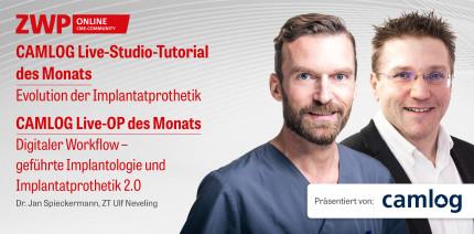 2 CME-Punkte: CAMLOG Live-Studio-Tutorial & Live-OP im Archiv