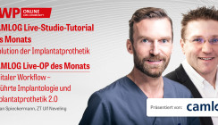 2 CME-Punkte: CAMLOG Live-Studio-Tutorial & Live-OP im Archiv