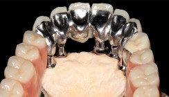 NEM-Fräsrohling für herausnehmbaren Zahnersatz in der Anwendung