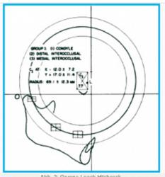 Die Spee'sche Kurve – Kieferorthopädie und Realität