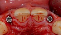 Sofortimplantation und Management des Weichgewebes - Ein Fallbericht