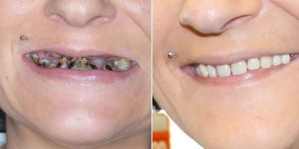 15 Jahre Zahnarzt-Abstinenz: Dentaler Horror mit Happy End