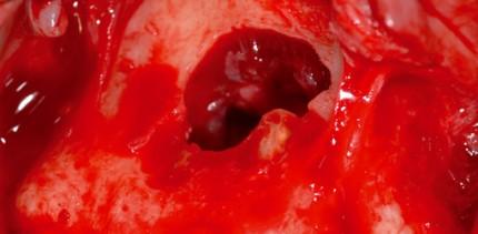 Therapiemöglichkeiten der nasopalatinen Zyste