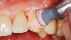 Implantatkronen: Funktion und Ästhetik lange erhalten