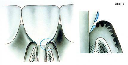 Parodontitis gleich Periimplantitis?
