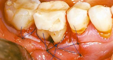 """Chirurgische Parodontaltherapie - ist """"resektiv"""" noch angesagt?"""