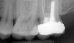 Endodontische Diagnostik und Behandlungsplanung