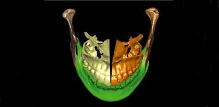 Die digitale Volumentomografie in der oralchirurgischen Praxis