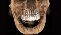 Vorteile der prothetisch orientierten 3-D-Implantatplanung
