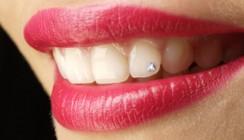 Twinkles, Dazzler, Grillz - Körperschmuck in der Zahnarztpraxis