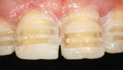 Minimalinvasive Zahnmedizin – das Mock-up zur Schonung der gesunden Zahnhartsubstanz