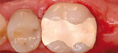 Multi-Purpose-Dentinersatzmaterial auf Basis der aktiven Biosilikat-Technologie