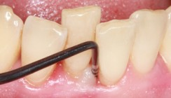 Parodontologische Prävention