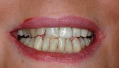 Zahnästhetik – eine Frage des Alters?