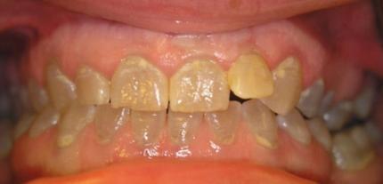 Dentinogenesis imperfecta hereditaria
