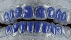 Stellenwert der Zahnaufhellung in der Ästhetik