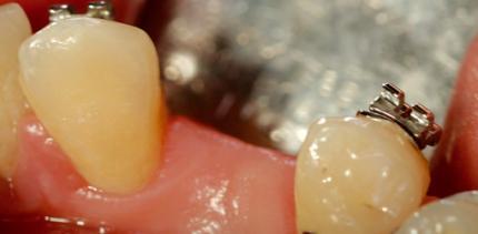 Die Optimierung des Implantatlagers