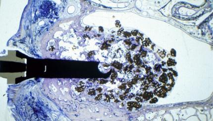 Biomaterialien für den Sinuslift