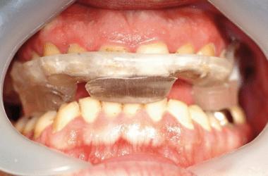 Sicherheit bei der Implantologie