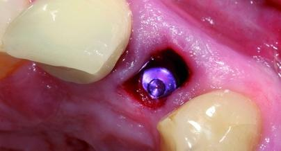 Chirurgisch-prothetische Behandlungskonzepte