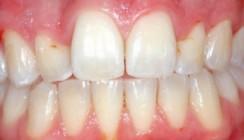 Möglichkeiten und Grenzen der ästhetischen Parodontalchirurgie
