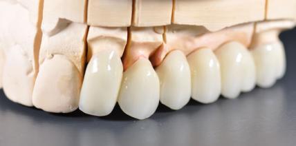 Keine neuen Zähne mehr über 80!