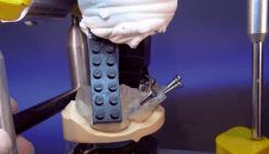 CAD/CAM-Technologie in der Implantatprothetik