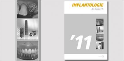 Jahrbuch Implantologie mit neuem Konzept