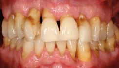 Die parodontale Problematik bei hormoneller Umstellung