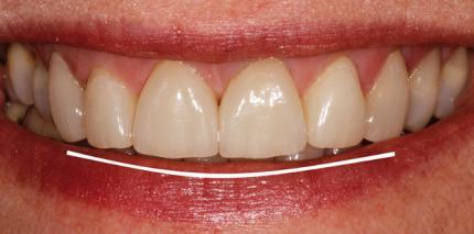 Zahnform- und Smilelinekorrektur durch Veneers